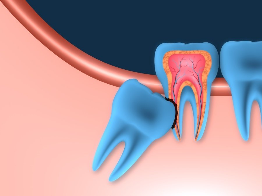 Wisdom Teeth | Complete Dental