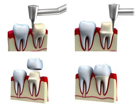 Dental Crowns | Complete Dental