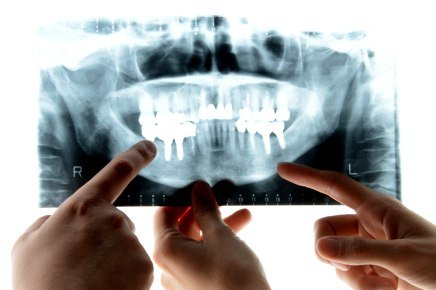 X-rays of your teeth and mouth | Complete Dental
