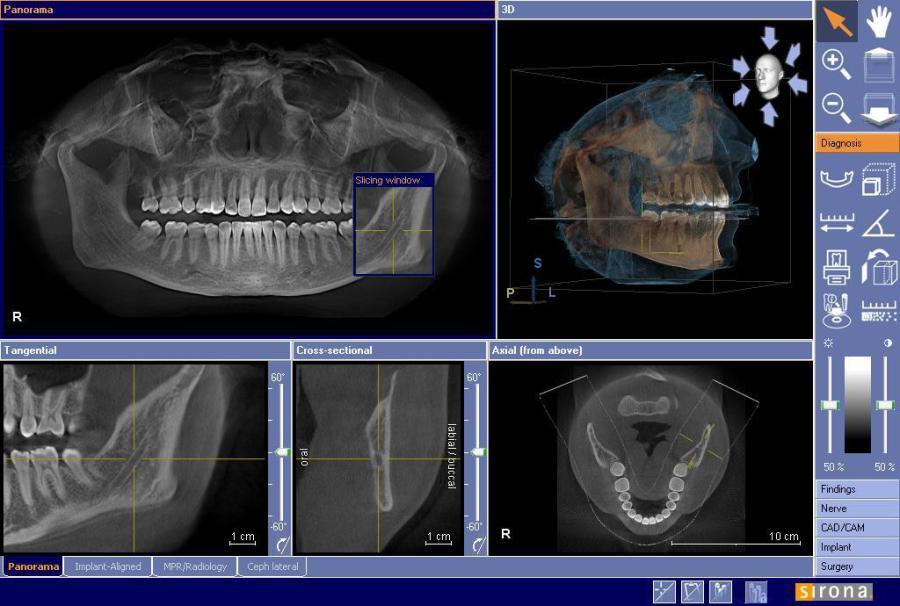 Cone Beam Imaging | Complete Dental