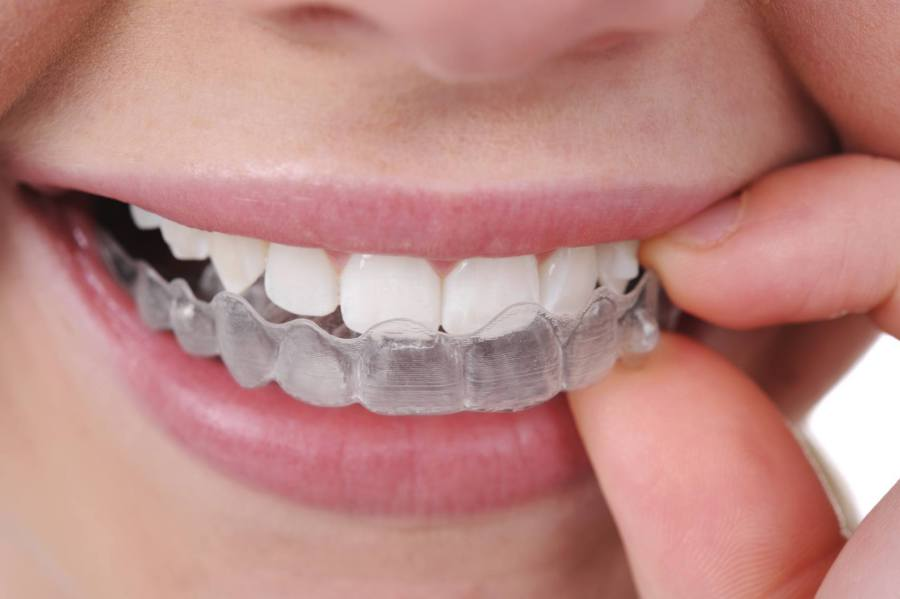 Orthodontics in Houston TX 1